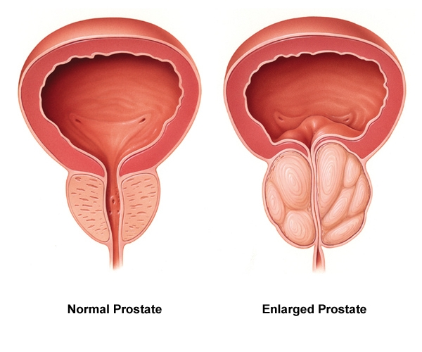 prostate quercetine